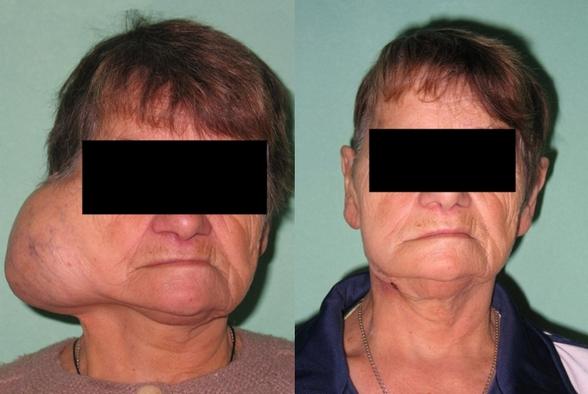 В итоге появляется небольшая активность мускул на лице с той стороны, которая оказалась поражена.