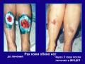 Склеродермия, трофические язвы, лимфостаз обеих голеней