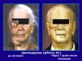 Злокачественная цилиндрома, вторичный отек лица, шеи