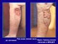 Рак кожи вторичный лимфостаз левой голени