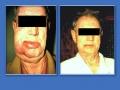 Лимфосаркома. Вторичный лимфостаз лица