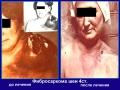 Фибросаркома шеи, вторичный отек шеи, надплечья