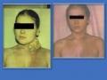 Лимфогранулематоз, вторичный отек лица, шеи