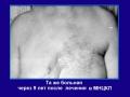 Заболевание левой молочной железы