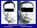 Рак слюнной железы, вторичный отек лица