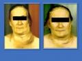 Лимфосаркома шеи слева, вторичный отек лица, шеи