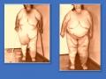 Вторичная лимфедема нижних конечностей. Ожирение 4 ст.