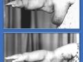 Постмастэктомическая лимфедема правой верхней конечности