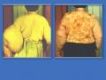 Вторичная постмастэктомическая лимфедема левой верхней конечности