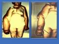 Вторичная постмастэктомическая лимфедема правой верхней конечности